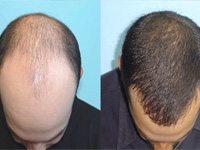 Hair transplantation is a skilled surgical technique